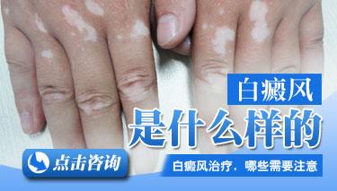白癜风病有些什么症状